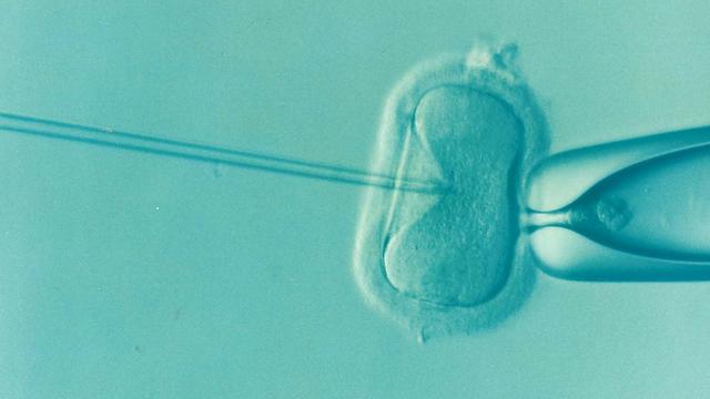 不妊治療にかかる費用を少しでも軽減したい!体外受精の助成金って、どんなしくみ?