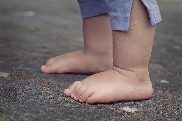 先天性股関節脱臼とは?どうすれば気づけるの?起こる原因や治療法について解説!