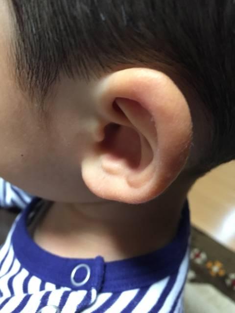 子供の病気で多い中耳炎!急性中耳炎と滲出性中耳炎の違いは?対処方法はあるの?