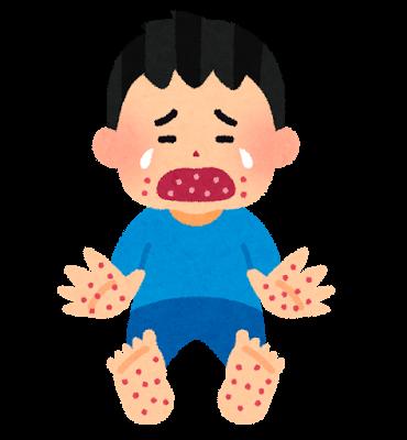 手足口病のイラスト | かわいいフリー素材集 いらすとや (63608)