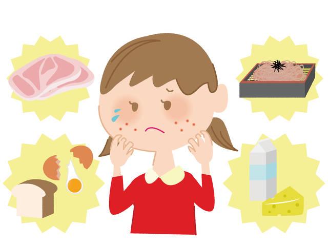 アレルギーイラスト/無料イラストなら「イラストAC」 (100196)