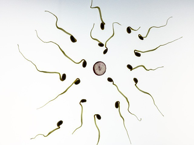Free photo: Sperm, Fertilization, Pregnancy - Free Image on Pixabay - 956480 (1383)