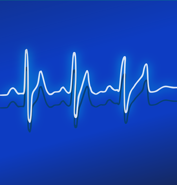 Free vector graphic: Ekg, Heartbeat, Frequency, Pulse - Free Image on Pixabay - 158177 (9661)