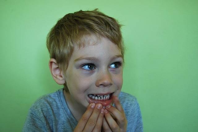 Free photo: Baby Teeth, Open, Teeth, Mouth - Free Image on Pixabay - 1402483 (62587)