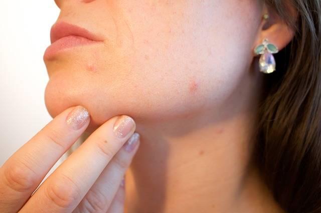Free photo: Acne, Pores, Skin, Pimple, Female - Free Image on Pixabay - 1606765 (92600)