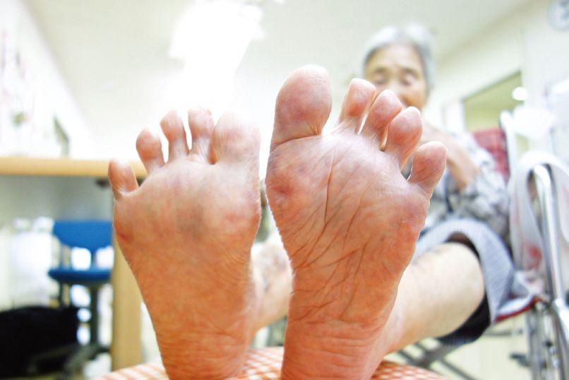 Kさんの足指。しっかりと開くことができる
