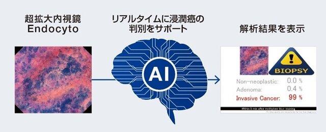 オリンパス、AIを搭載した内視鏡画像診断支援ソフトウェアを提供へ