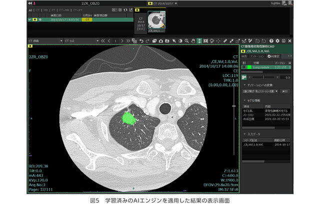専門知識なしで画像診断支援のAI技術を開発できる「AI開発支援プラットフォーム」を共同開発、富士フイルムと国立がん研究センター