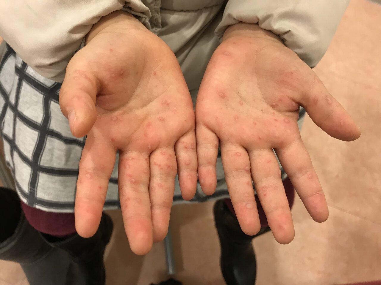 手足口病症例画像