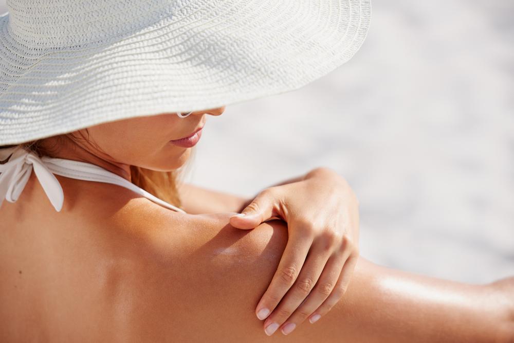 【皮膚科医監修】シミを残さない!日焼け後はすぐにアフターケアを