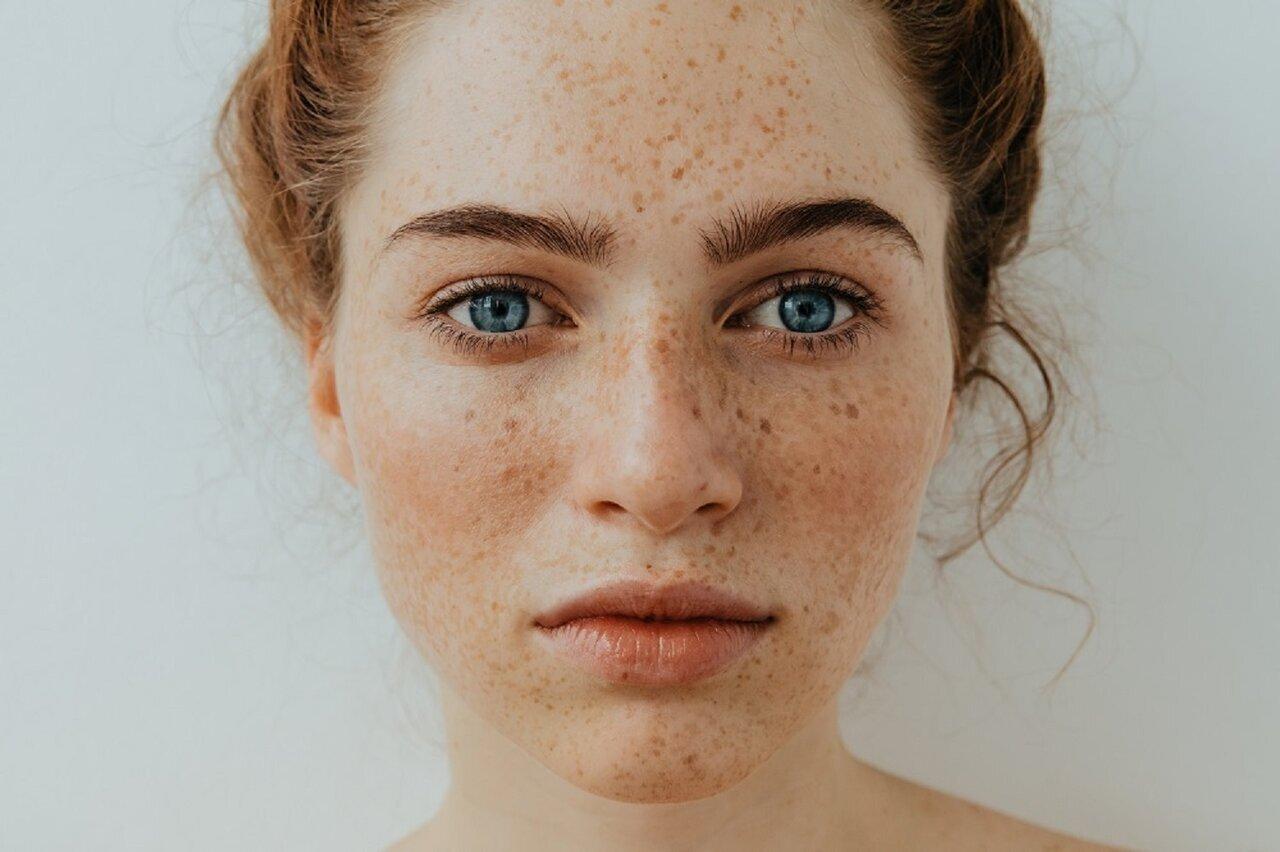 【皮膚科医監修】シミを残さない!日焼け後はすぐにアフターケアを - Her ELEGANCE