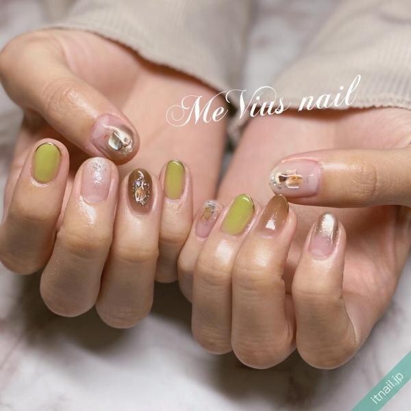 MeVius nail