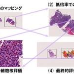 病理画像解析システム「e-Pathologist」