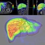 MRIとCTの違いとは?