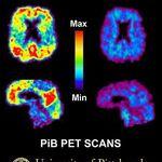 【認知症を調べるRI薬剤①】PIB,PBB3
