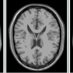 医用画像位置合わせの基礎③ 〜MRI画像を使った相互情報量の計算〜