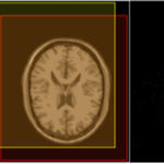 医用画像位置合わせの基礎④ 〜LPixel ImageJ pluginを用いた画像位置合わせ〜