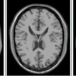 医用画像位置合わせの基礎⑤~Fiji pluginを用いた画像位置合わせ~