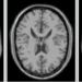 医用画像位置合わせの基礎⑥ 〜アフィン変換とは?〜