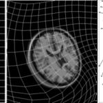 医用画像位置合わせの基礎⑧〜非線形変換を用いた画像位置合わせ〜