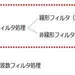 シリーズ6.マクロ言語を使った画像処理の応用編~ノイズ軽減② 空間フィルタ処理~