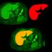 Deep learningで画像認識⑩〜Kerasで畳み込みニューラルネットワーク vol.6〜