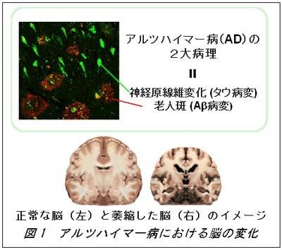 放射線医学研究所