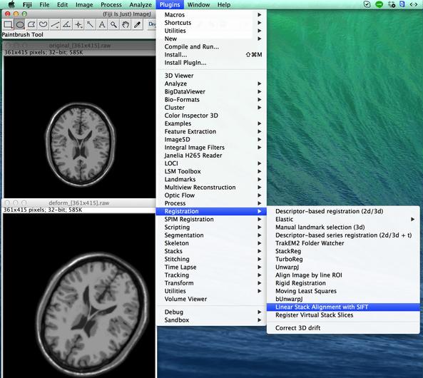 図4. 特徴点を用いて画像位置合わせを行うplugin