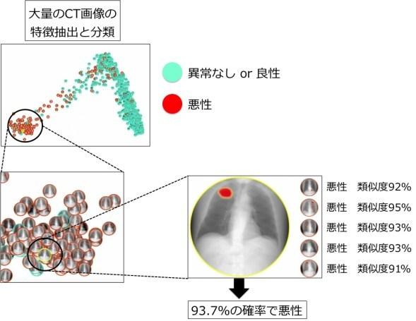 図4. Deep learningを用いた医用画像の自動診断