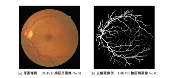 眼底画像における血管抽出問題でHLACが使われている
