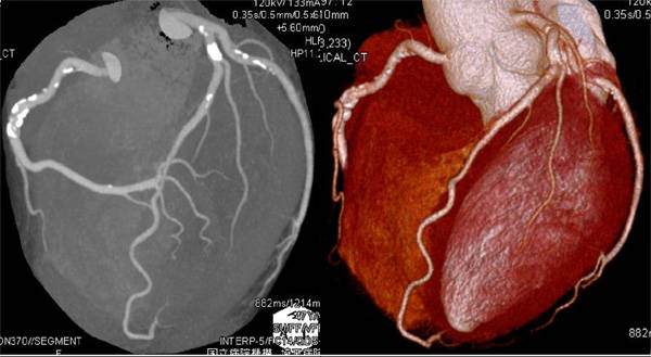 64列マルチディテクターCTを用いた冠動脈CT検査