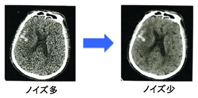 (図1)Deep Learningを用いた画質改善