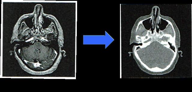 (図2)Deep Learningを用いた画像変換