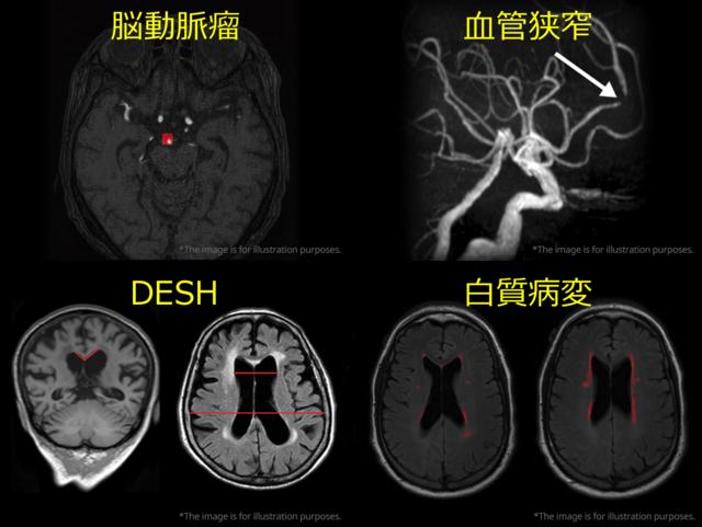 図2. 脳領域の様々な疾患へのAI応用