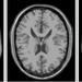 医用画像位置合わせの基礎⑥ 〜アフィン変換とは?〜 | LP-tech