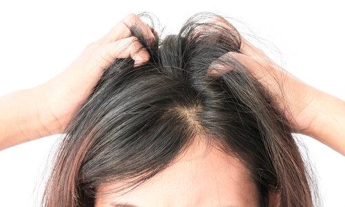 頭皮のかゆみが気になる時の見るべきポイント?最終的には皮膚科へ行こう
