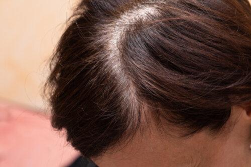 女性で薄毛が気になる場所ナンバーワンは分け目!問題を解決する方法