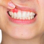 歯周病は治せる? 歯科で行う歯周病検査や詳しい治療内容も紹介【歯科医師監修】