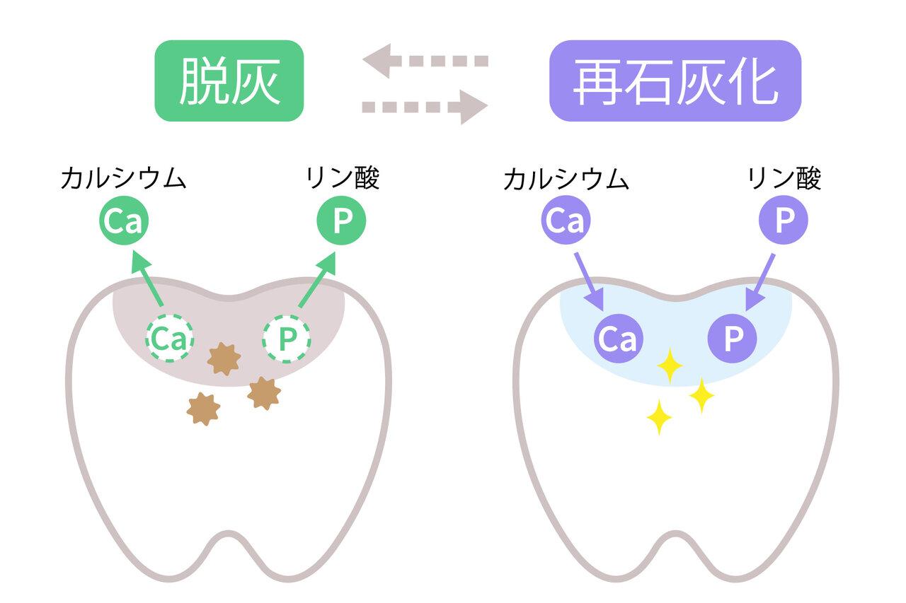 緩衝能はむし歯に対する防御力? シルハ 項目解説