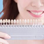 自宅でのホワイトニングでも歯は白くなる? 気になる効果や注意点を紹介
