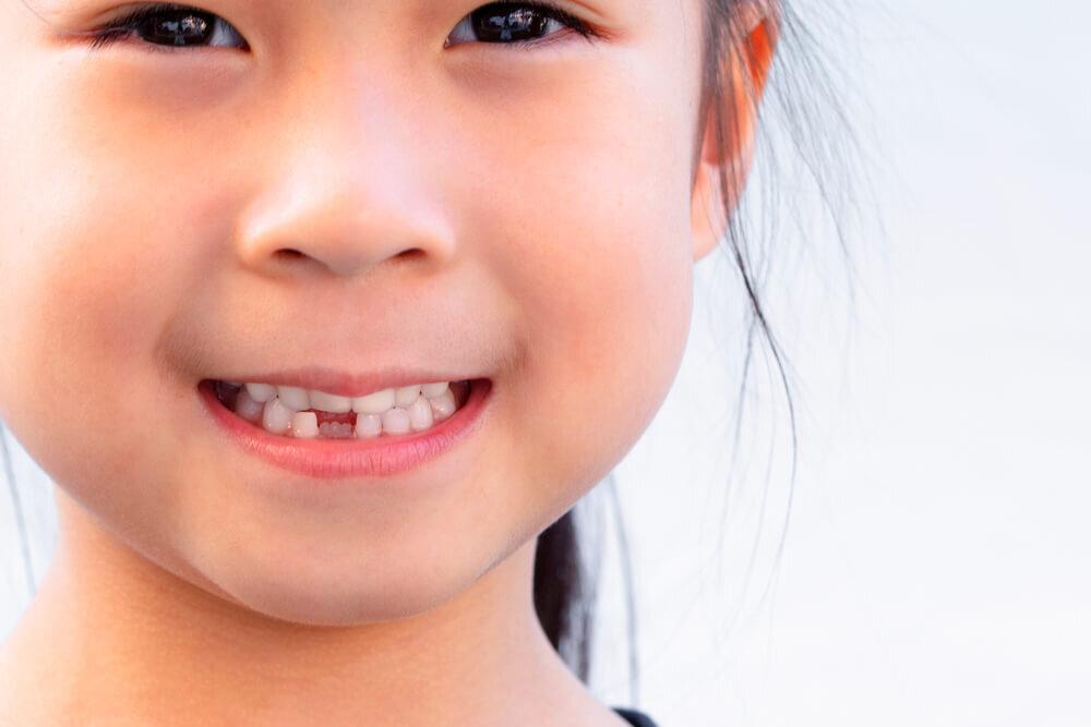 永久歯に生え変わった! いつまでも健康的な歯でいるために、できることとは