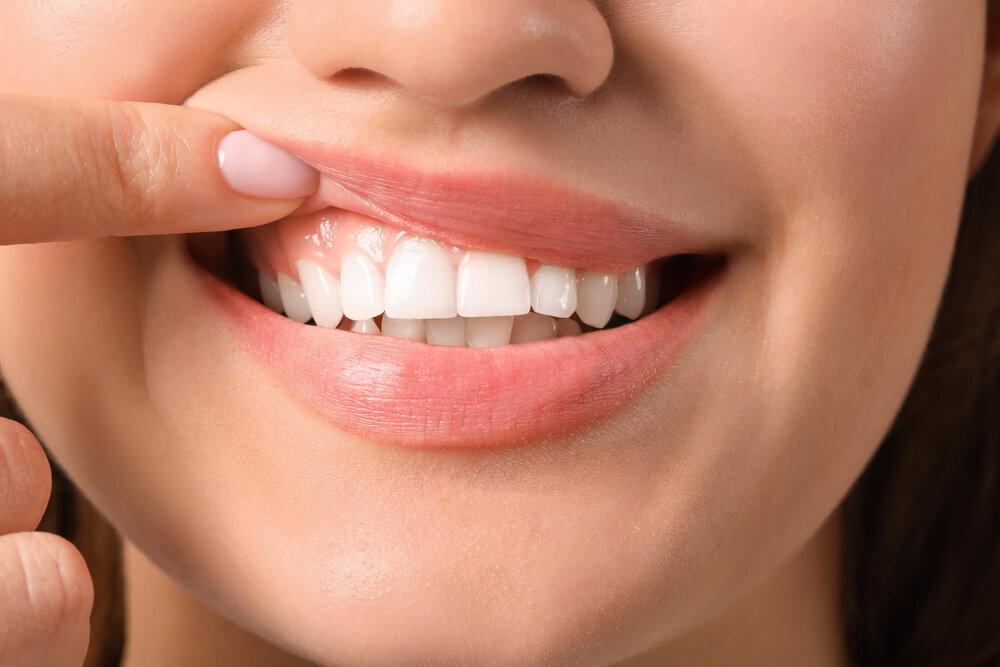 歯ぐきに白いできものが!? 原因や対処法、受診すべき目安についてもご紹介