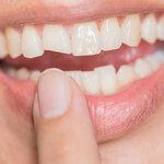 歯が欠けた! すぐに病院へ行けないときの応急処置や注意点を解説【歯科医師監修】